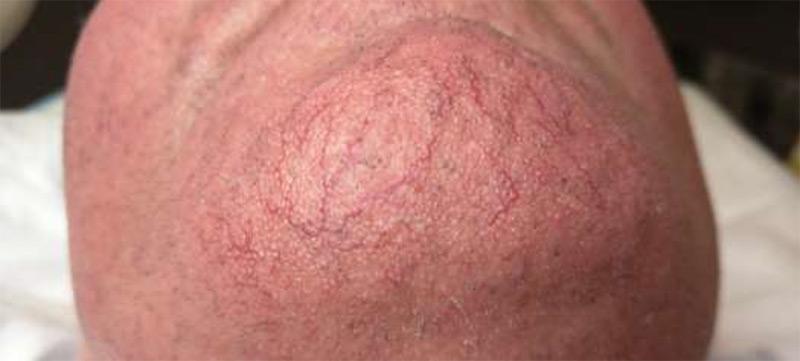 facial telangiectasia - Cure Newsletter April 2020