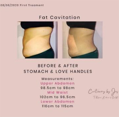 fat caviation 2 - Cure Newsletter July 2020