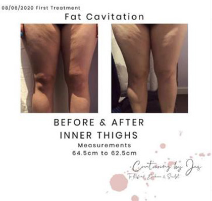 fat caviation 4 - Cure Newsletter July 2020