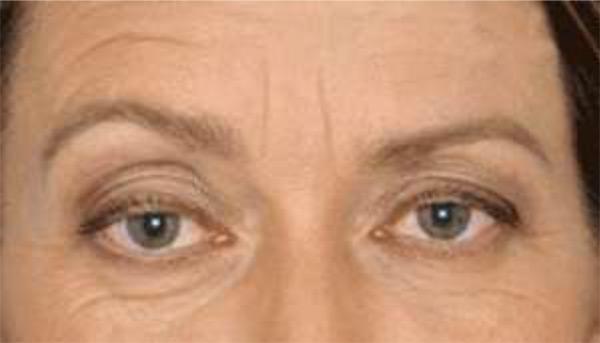 wrinkles - Cure Newsletter April 2020